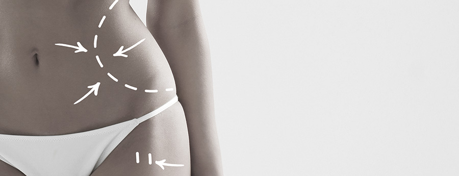 Common Body Contouring Questions Answered